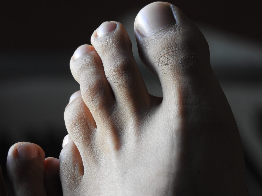 Diabetic foot care, discipline is require to stay healthy